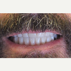 45-54 year old man treated with All-on-4 Dental Implants after 3056479
