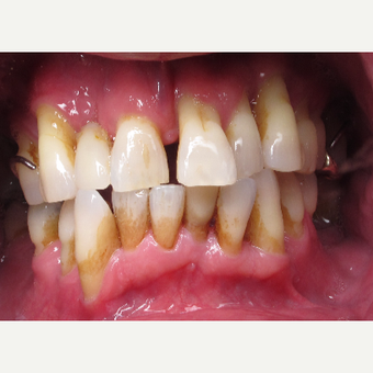 45-54 year old man treated with All-on-4 Dental Implants before 3056479