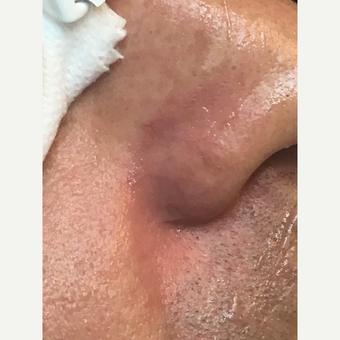 25-34 year old man treated with Laser Treatment after 3507742