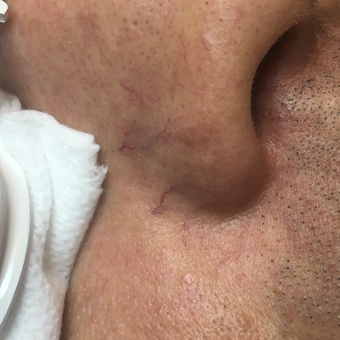 25-34 year old man treated with Laser Treatment before 3507742