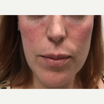 35-44 year old woman treated with Voluma after 3664832
