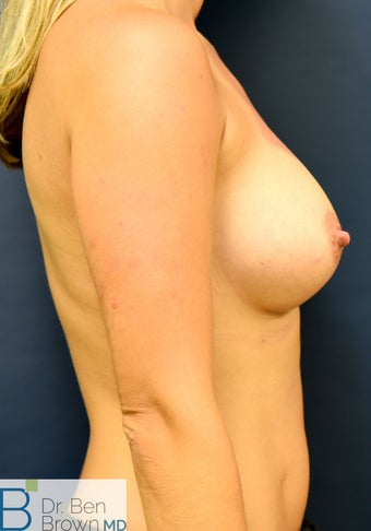 25-34 year old woman treated with Breast Augmentation 3486942