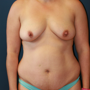 35-44 year old woman treated with Mommy Makeover before 3554431