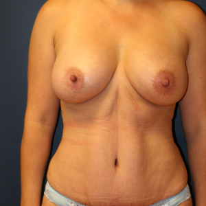35-44 year old woman treated with Mommy Makeover after 3554431