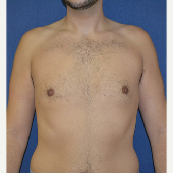 18-24 year old man treated with Male Breast Reduction after 3225516