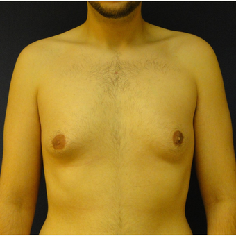 18-24 year old man treated with Male Breast Reduction before 3225516