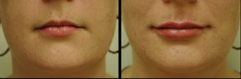 Juvederm for Lip Augmentation before 981991