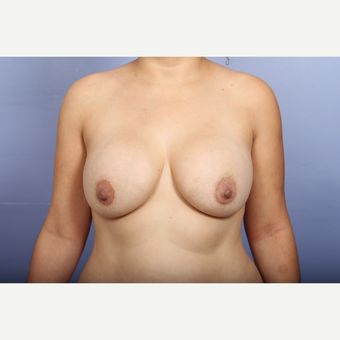 25-34 year old woman treated with Breast Lift with Implants before 3110295