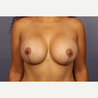 25-34 year old woman treated with Breast Lift with Implants after 3110295