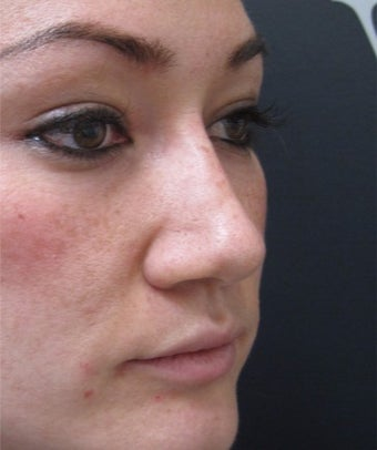 Instant visible results with the non surgical nose job after 3358416