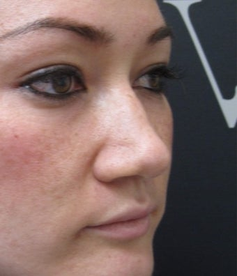 Instant visible results with the non surgical nose job before 3358416