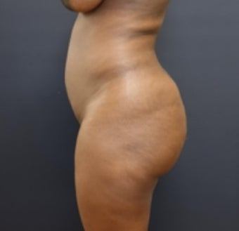35-44 year old woman treated with Butt Augmentation before 3200917