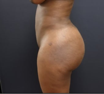 35-44 year old woman treated with Butt Augmentation after 3200917
