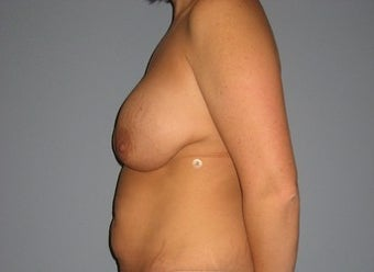 33 Year Old Breast Revision Patient