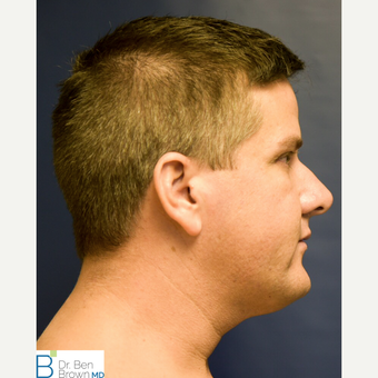 35-44 year old man treated with Liposuction of the neck before 3486888