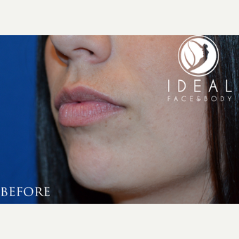 18-24 year old woman treated with Lip Augmentation before 1773561