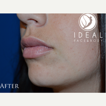 18-24 year old woman treated with Lip Augmentation after 1773561