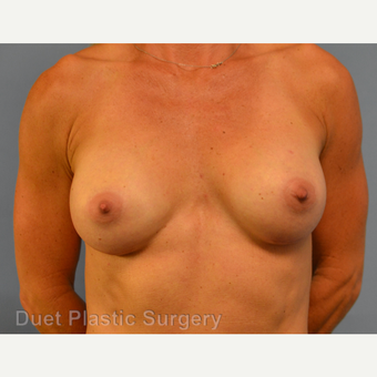 45-54 year old woman treated with Breast Augmentation after 3342134