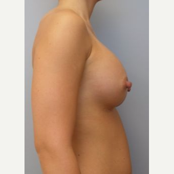 18-24 year old woman treated with Breast Implants after 3107983