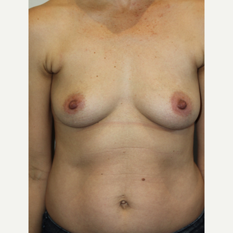 45-54 year old woman treated with Breast Augmentation before 3015291