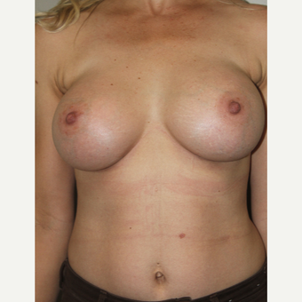 45-54 year old woman treated with Breast Augmentation after 3015291