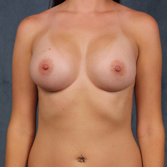 26 year old female wants full breast augmentation with silicone gel implants. after 3045160