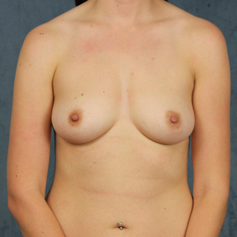 26 year old female wants full breast augmentation with silicone gel implants. before 3045160