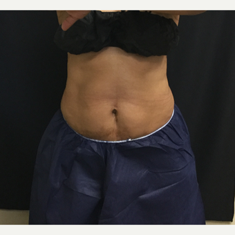 65-74 year old woman treated with CoolSculpting after 3390661