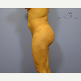 18-24 year old woman treated with Liposuction after 3391543