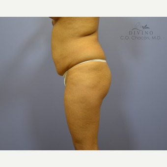 18-24 year old woman treated with Liposuction before 3391543