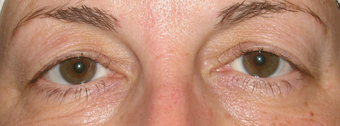 Micropigmentation and upper blepharoplasty before 1307674