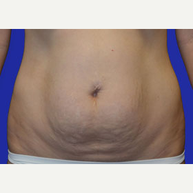 25-34 year old woman treated with Tummy Tuck before 3519867