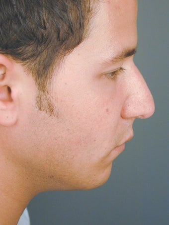 Male Chin Implant before 831471