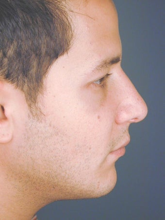 Male Chin Implant after 831471