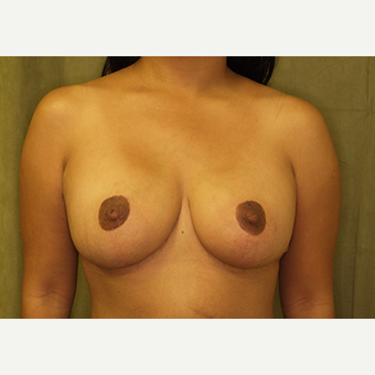 25-34 year old woman treated with Breast Lift with Implants after 3027978