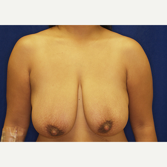 25-34 year old woman treated with Breast Lift with Implants before 3027978