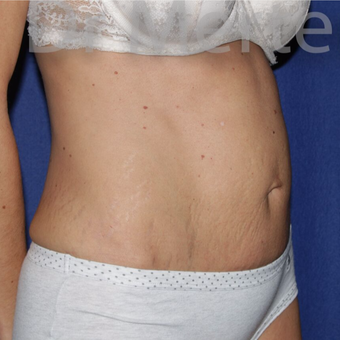 Tummy Tuck before 3599402