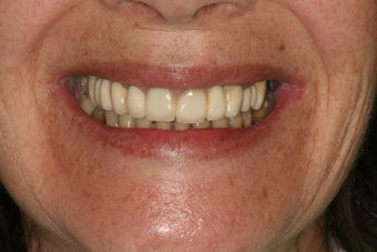 Full mouth reconstruction, bad dental implants before 744976