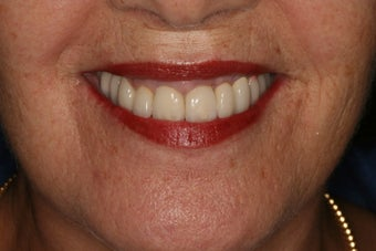 Full mouth reconstruction, bad dental implants after 744976