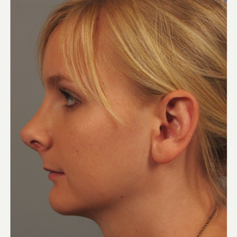18-24 year old woman treated with Chin Surgery and Rhinoplasty after 3344172