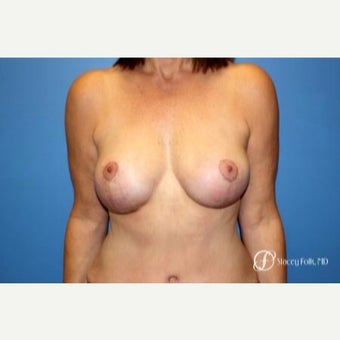 45-54 year old woman treated with breast lift (mastopexy) with a fat transfer to the breast after 2656132