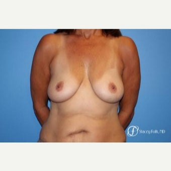 45-54 year old woman treated with breast lift (mastopexy) with a fat transfer to the breast before 2656132