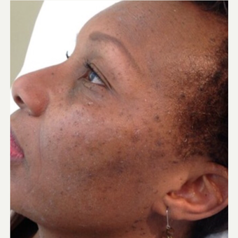 45-54 year old woman treated with Mole Removal after 3453469