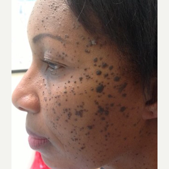 45-54 year old woman treated with Mole Removal before 3453469