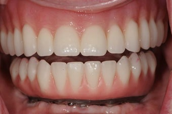 Same Day Teeth- Immediate implants and teeth after 946768