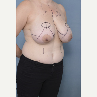 35-44 year old woman treated with Breast Reduction before 3436272