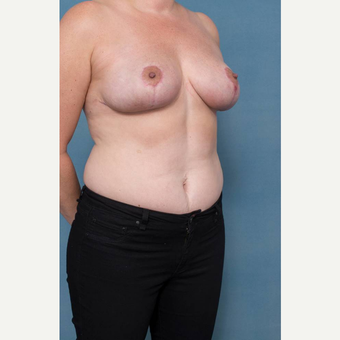 35-44 year old woman treated with Breast Reduction after 3436272