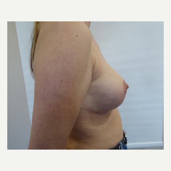 35-44 year old woman treated with Breast Lift after 3428294