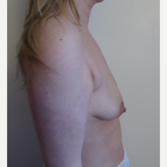 35-44 year old woman treated with Breast Lift before 3428294