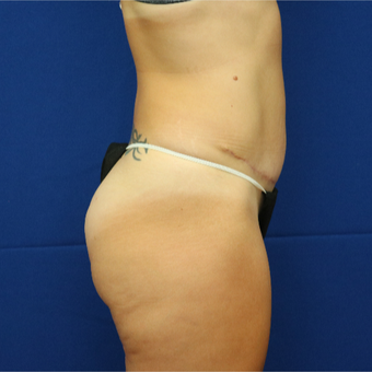 25-34 year old woman treated with Tummy Tuck after 3685773